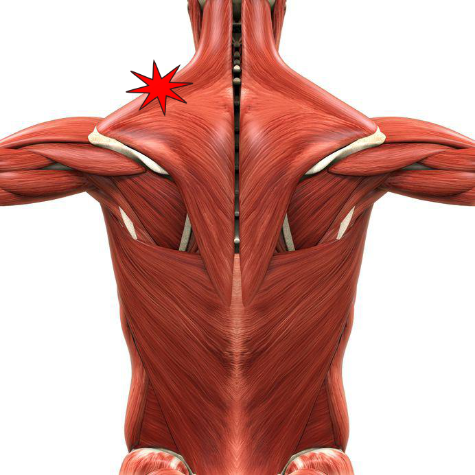 Why Do We Get Knots In Our Muscles? - Osteopathy New York ...
