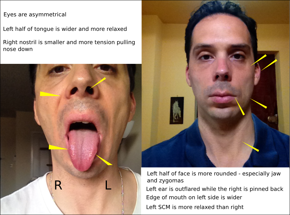 frenectomy for relief osteopathic